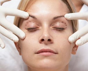 Blepharoplasty Surgery at cosmosure
