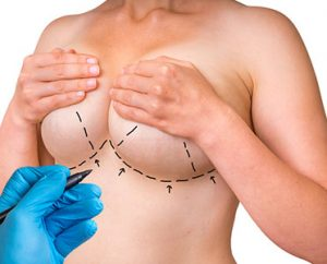Breast Lift in hyderabad