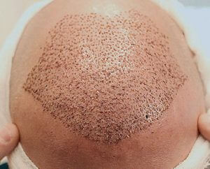Follicular Unit Extraction/ FUE Hair Transplant in Hyderabad