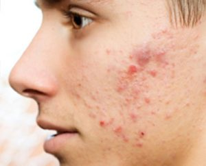 Acne scars and post-surgical scars