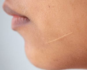 Scar Removal Surgery in Hyderabad