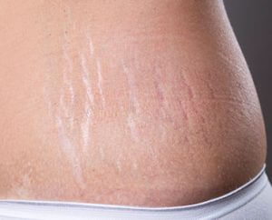 Stretch Marks Solution