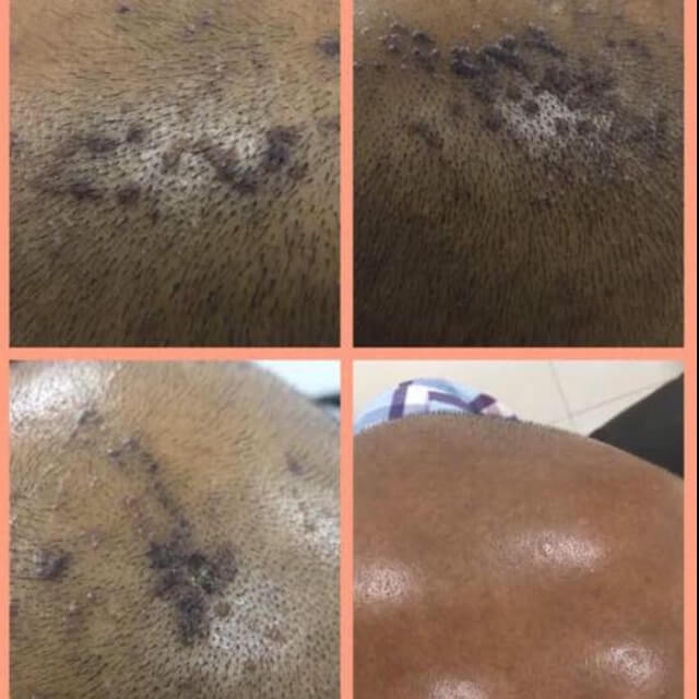 new treatment modality intra lesional