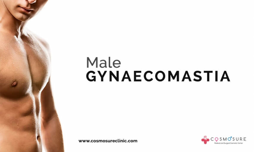 Gynecomastia surgery procedure