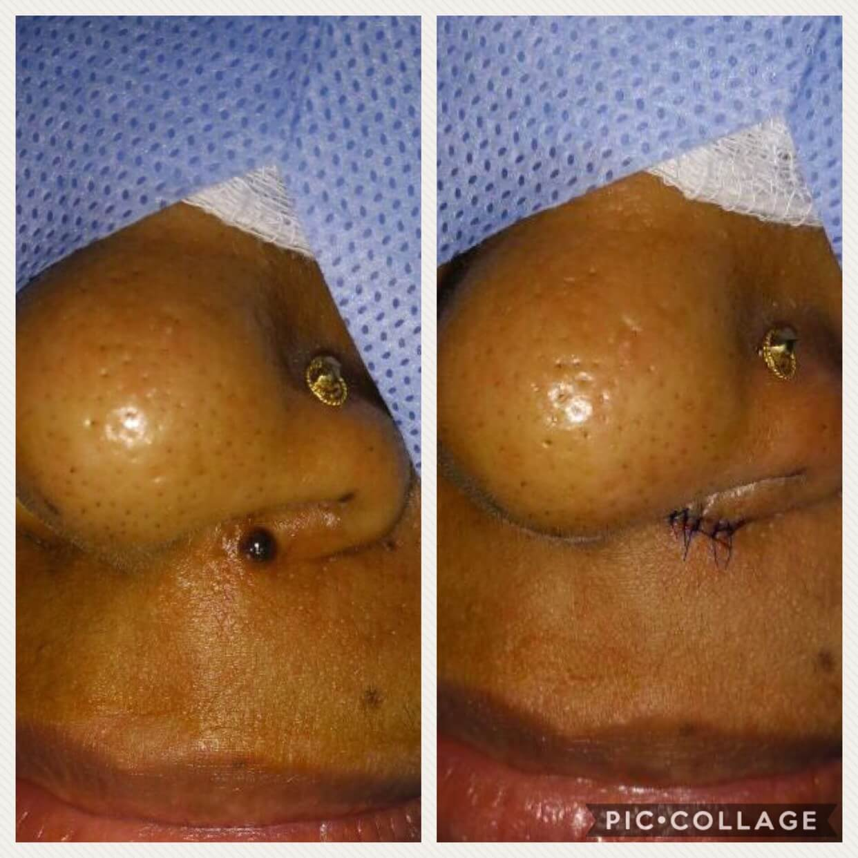 Mole excision immediate post op