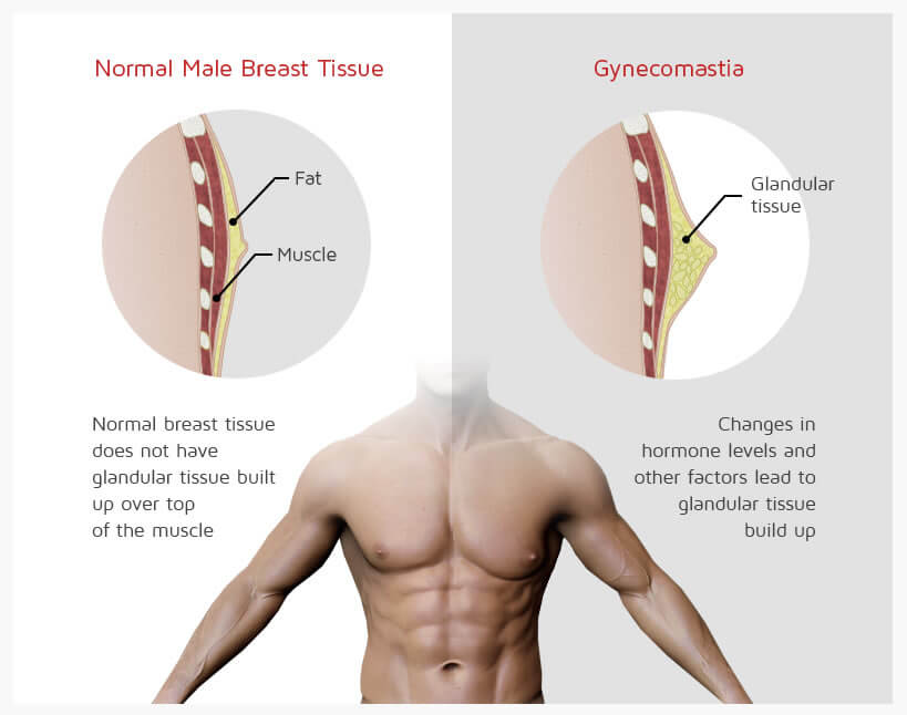 what-is-gynecomastia