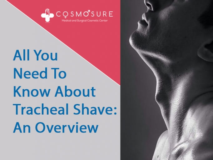 all you need to know about tracheal shave cosmosure clinic
