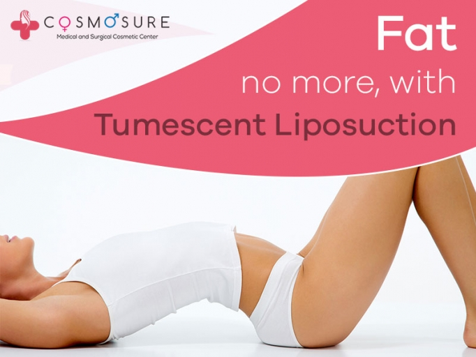 Tumescent Liposuction Surgery in Hyderabad