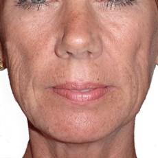 Face Sculpting Surgery
