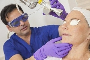 Laser Treatment for Pimplesin Hyderabad