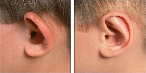 Otoplasty or Ear Surgery
