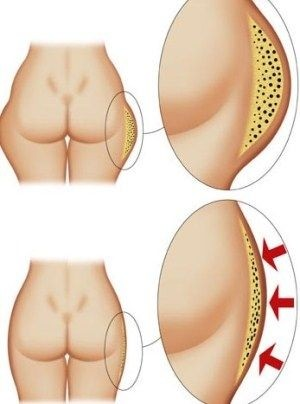 Liposuction Surgery Parts