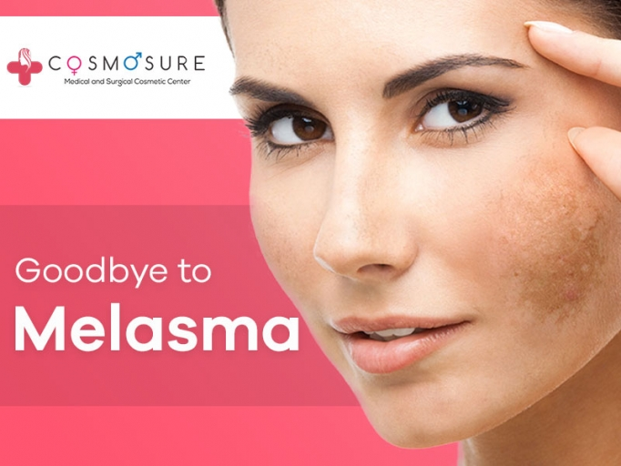 Melasma Treatment in Hyderabad