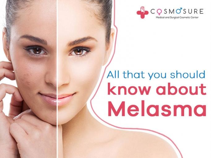Melasma Treatment
