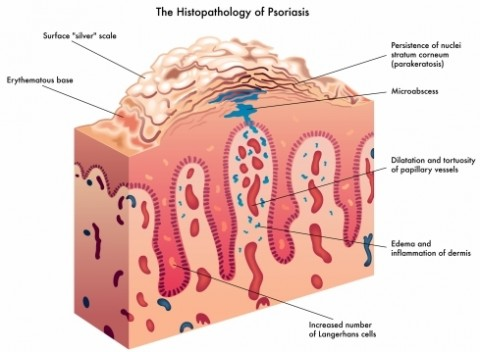 What is psoriasis