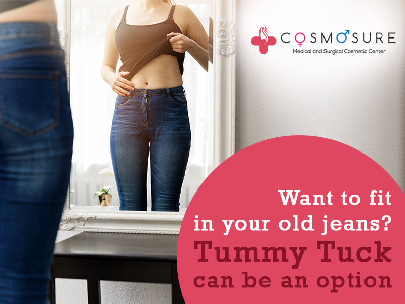 Want To Fit Into our Old Jeans? Try Tummy Tuck.
