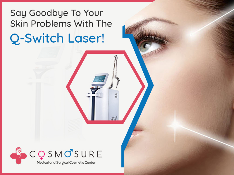Cosmosure Clinics Proudly Announces The Acquiring Of The Q-Switch Laser!