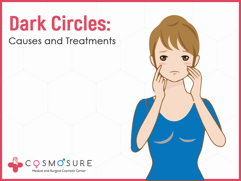 Dark Circles: Causes And Treatments