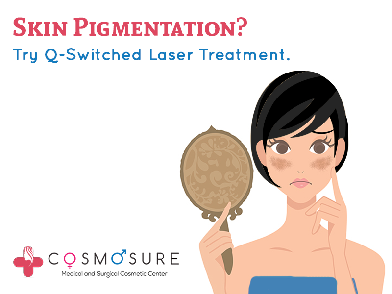 Skin Pigmentation? Try Q-Switched Laser Treatment