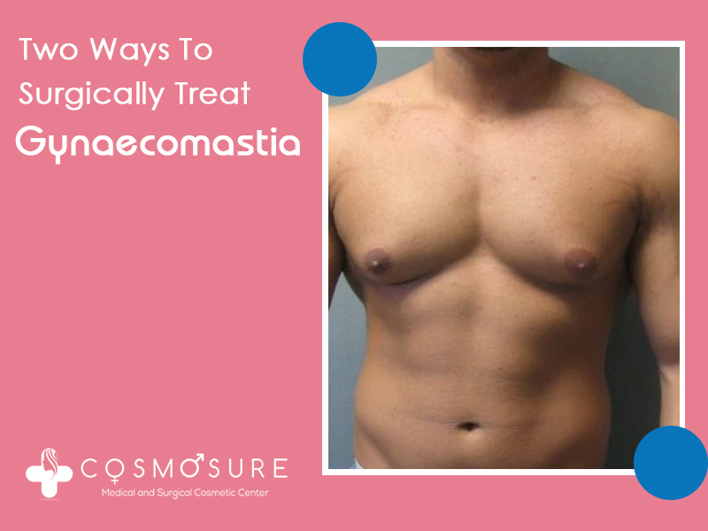 Here Are The Two Ways To Treat Gynecomastia