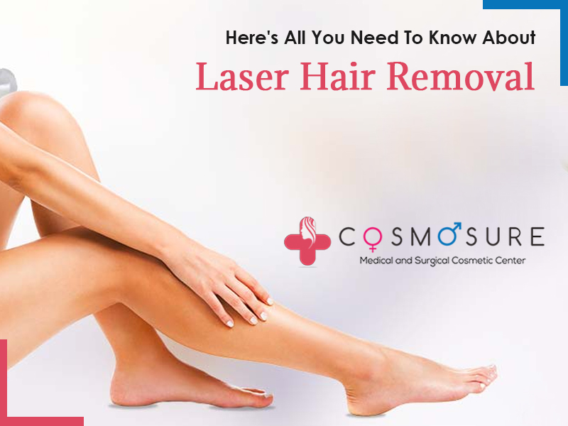 Here's All You Need To Know About Laser Hair Removal