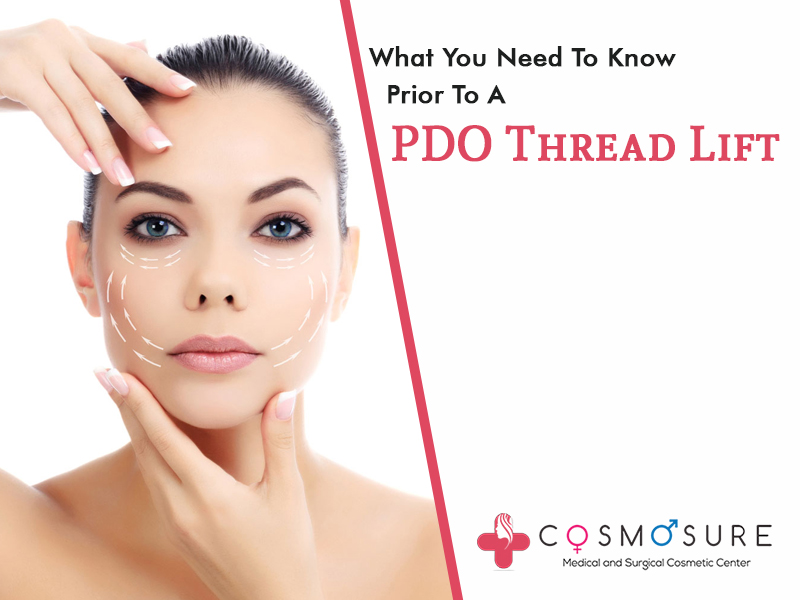 What You Need To Know Prior To A PDO Thread Lift