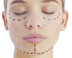 Facelift Surgery at Cosmosure
