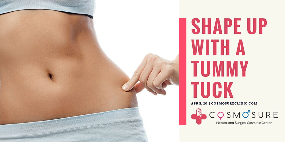 Shape up with a tummy tuck