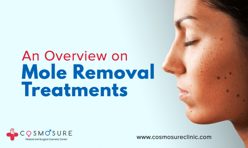 An Overview on Mole Removal Treatments
