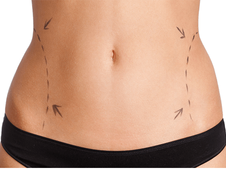 endoscopic tummy tuck