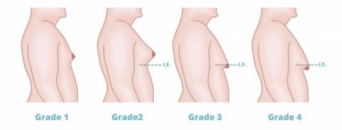 causes gynecomastia