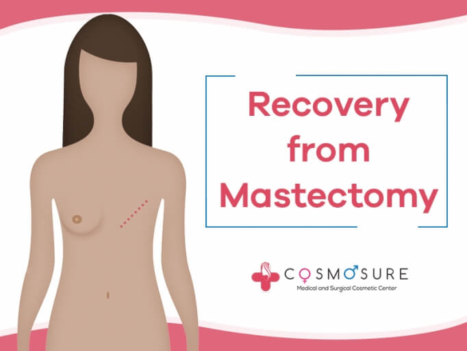 Recovery from Mastectomy