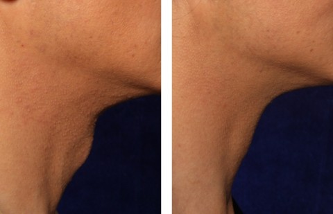 Tracheal Shave