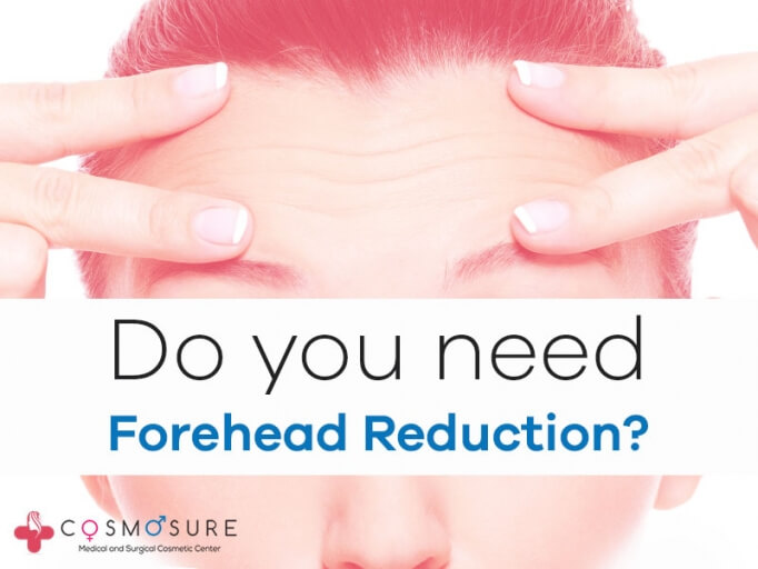 Forehead Reduction