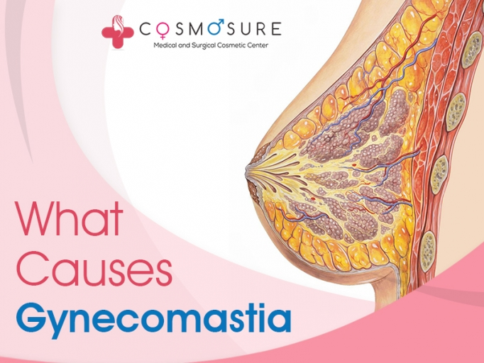 Causes Of Gynecomastia