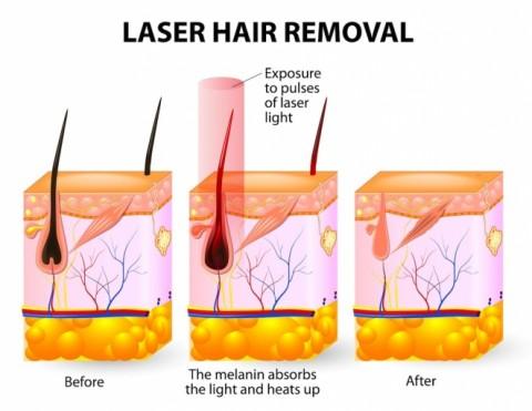 Understanding Laser Hair Removal