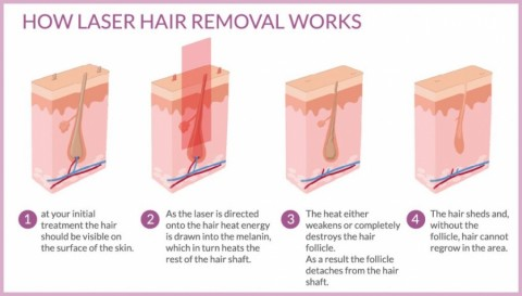 laser hair removal work