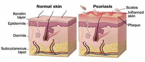 Difference between Normal Skin and Psoriasis