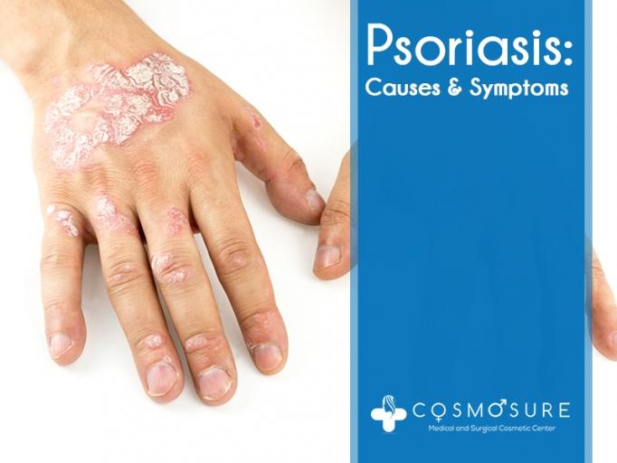 Psoriasis: Causes and Symptoms