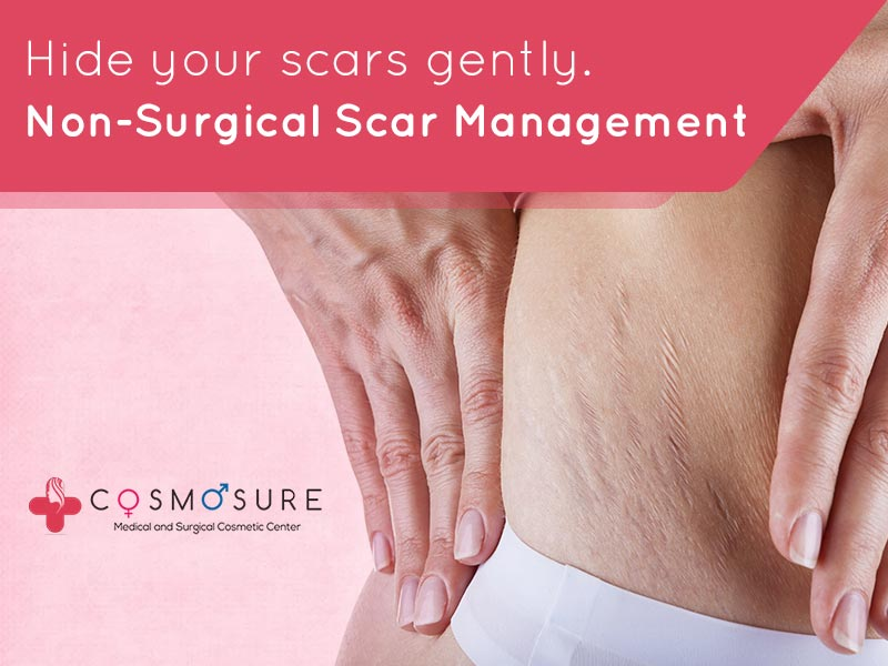 Hide your scars gently