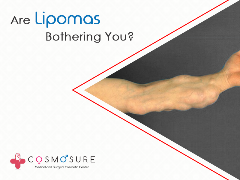Lipomas: Causes, Symptoms and Treatments