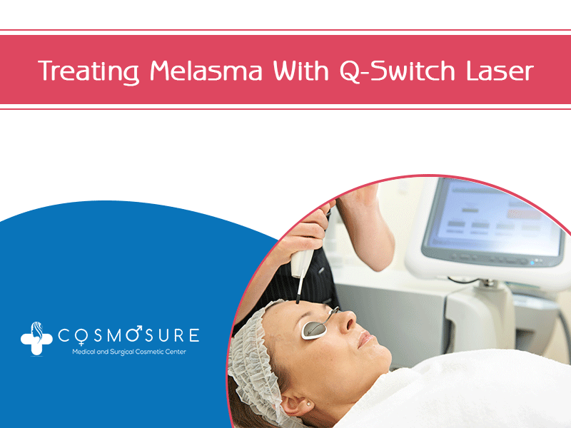 Treating Melasma With A Q-Switch Laser