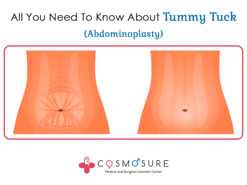 All You Need To Know About Tummy Tuck (Abdominoplasty)