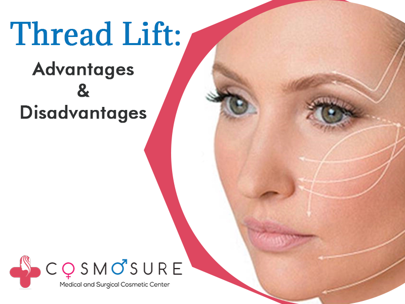 Best Face Thread Lift treatment in Hyderabad,female dermatologist near me
