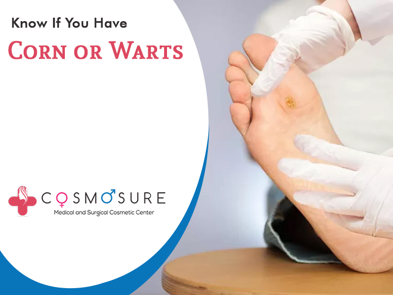 Know If Your Foot Lesions Are Corn Or Warts