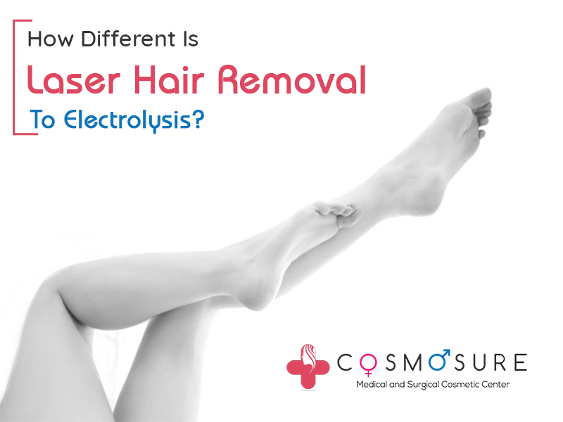 Electrolysis vs. Laser Hair Removal Which Is Best For Hair Removal in hyderabad, top dermatologist near me