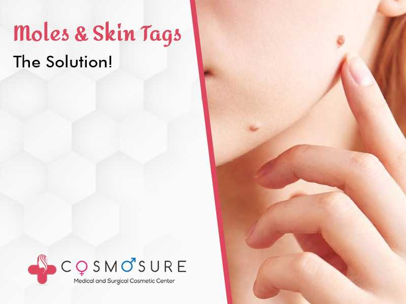 Moles & Skin Tags: The Solution!