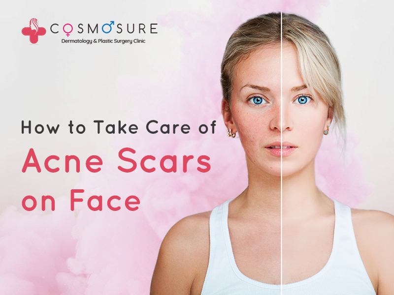 How to Take Care of Acne Scars on Face?