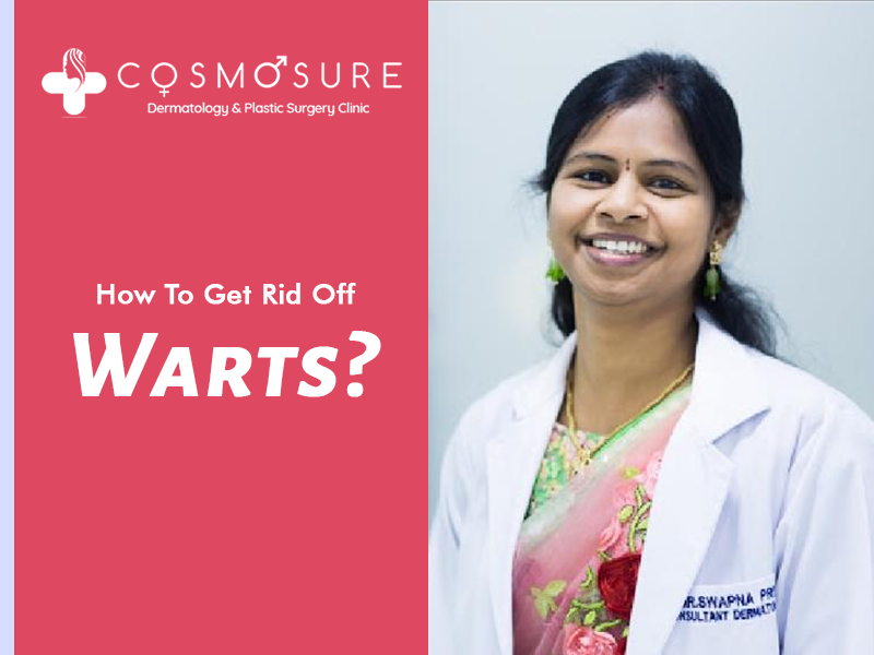 How to get rid of warts on fingers by Dr Swapna priya, one of the best skin expert in hyderabad
