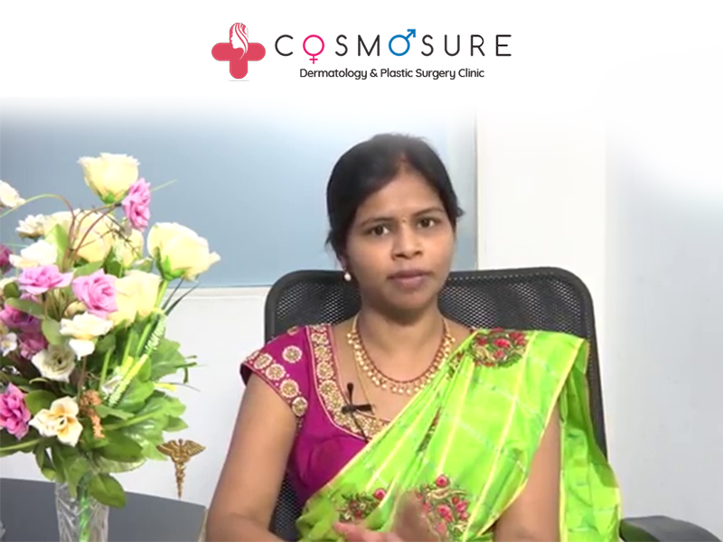 Best treatment for baldness by Dr Swapna Priya, one of the best specialist in hyderabad